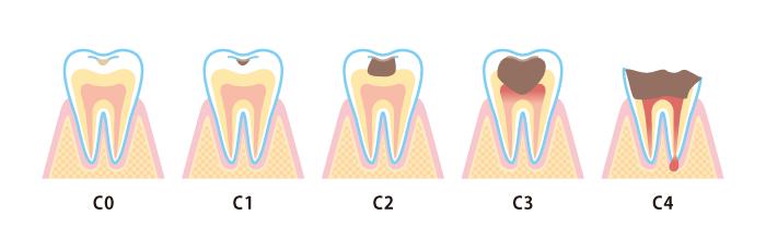 虫歯の進行段階