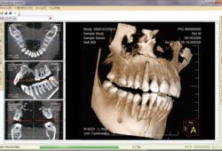 3D画像診断